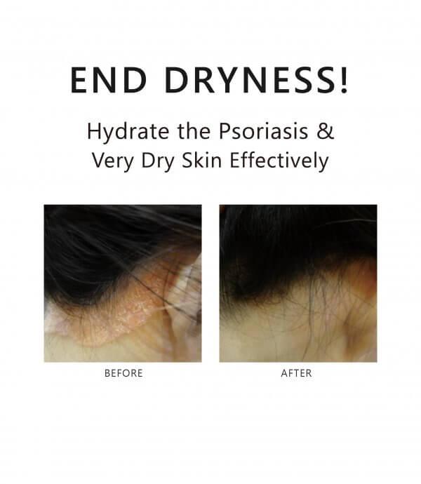 AROMASE-Psoriasis skin scalp tonic-02