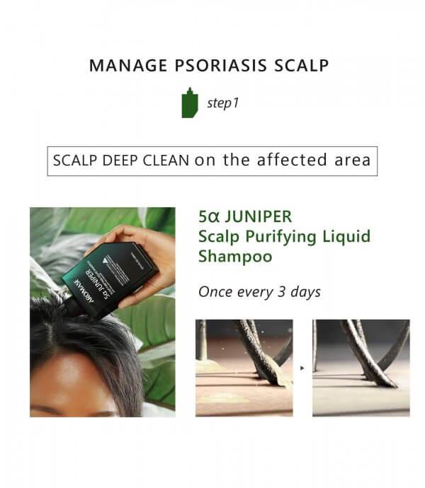 AROMASE-Psoriasis skin scalp tonic-04