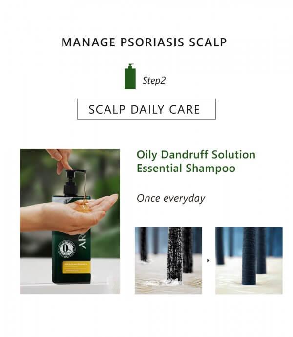 AROMASE-Psoriasis skin scalp tonic-05