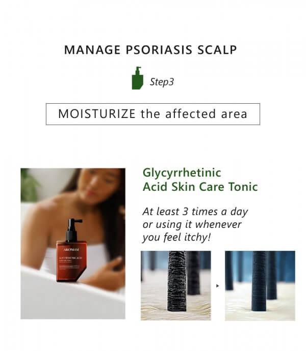 AROMASE-Psoriasis skin scalp tonic-06