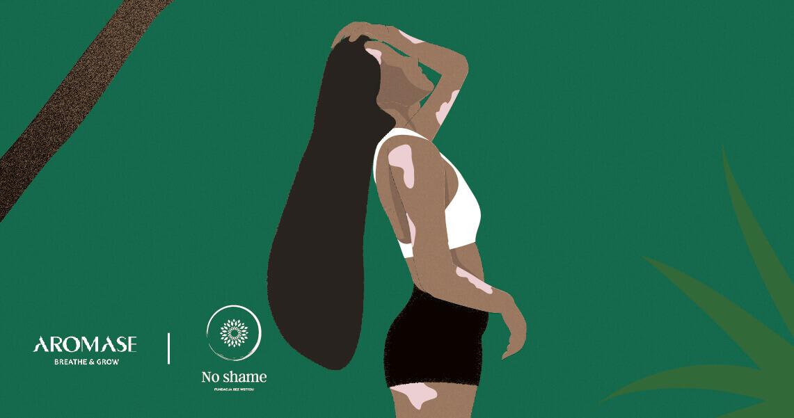 Psoriasis-scalp care-noshame-aromase